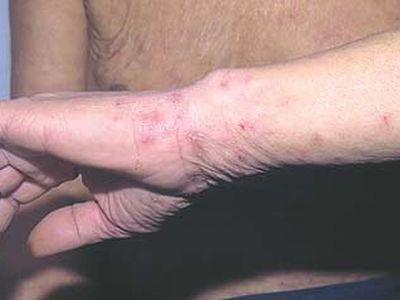 спрей от аллергии нового поколения список
